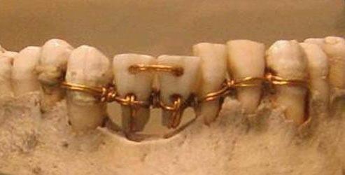 Neverovatni ortodontski zahvat - proteza, otkriven na mumiji staroj više od 4000 godina. Prednja dva zuba su ugrađena sa tuđe vilice.