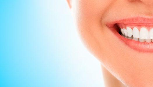 Prirodnim putem do holivudskog osmeha